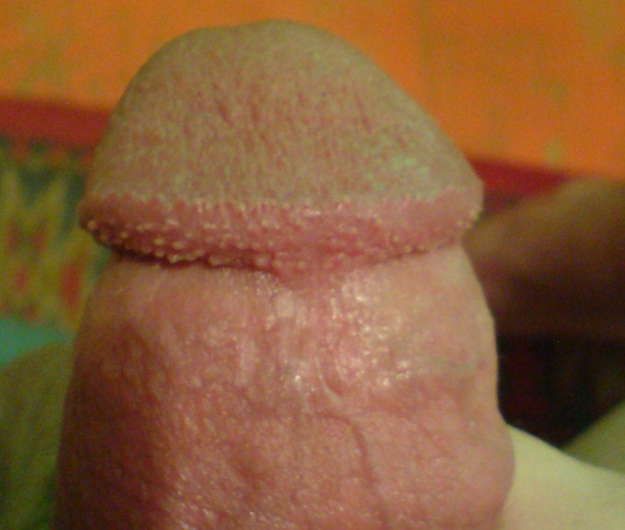 Слишком облегающие трусы могут вызвать мелкие пупырышки на половом члене