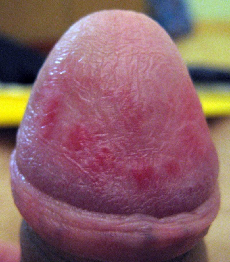 Прыщи на половом члене могут служить симптомом инфекционного заболевания