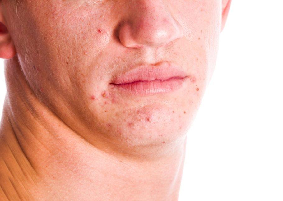 Если прыщи на фоне бритья всё-таки появились, важно начать своевременное лечение