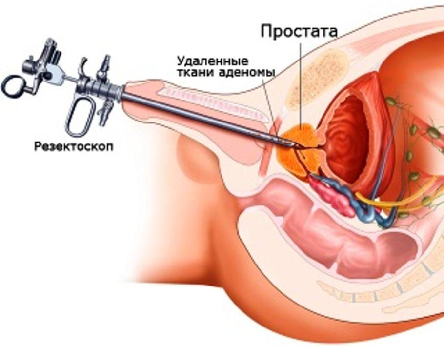 Разрастаясь, предстательная железа начинает сдавливать окружающие ткани и органы