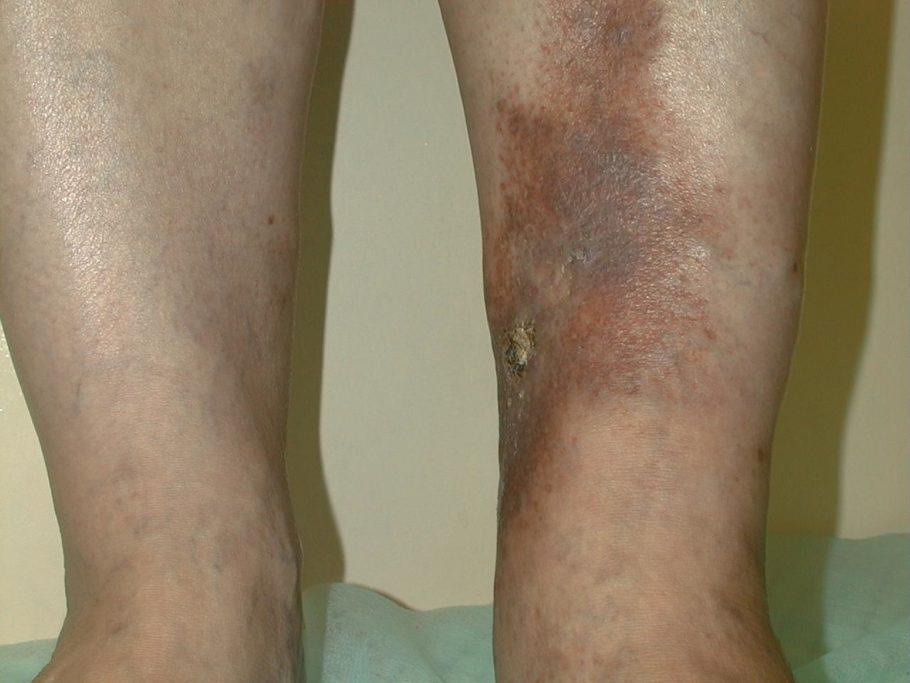 Оно приводит к потерям ткани, а на коже, после заживления язвы, остаются рубцы