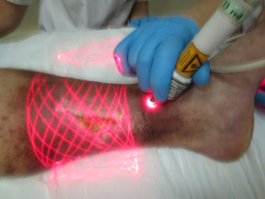 язва на ноге и лазер