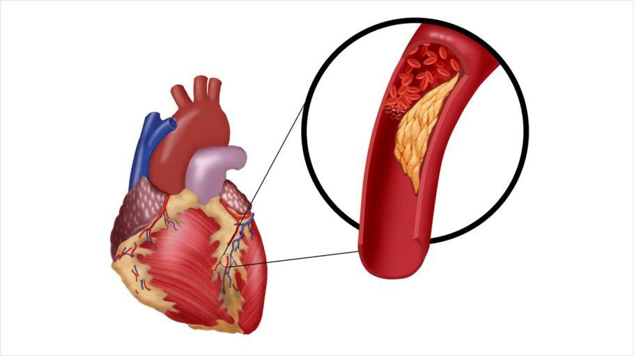 рисунок сердце