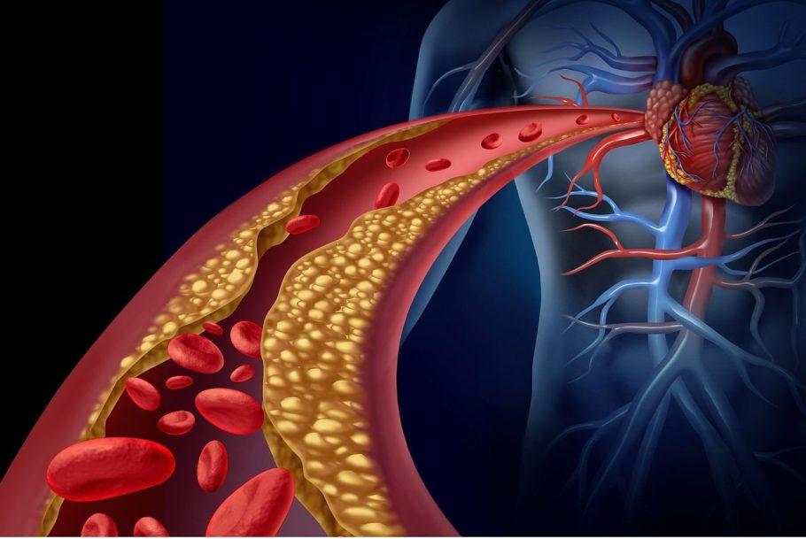 Он выполняет функцию «пробки» — перекрывает поток крови
