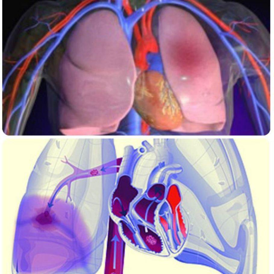 Как правило, он может переместиться в лёгкие из сердца, верхней или нижней полой вены
