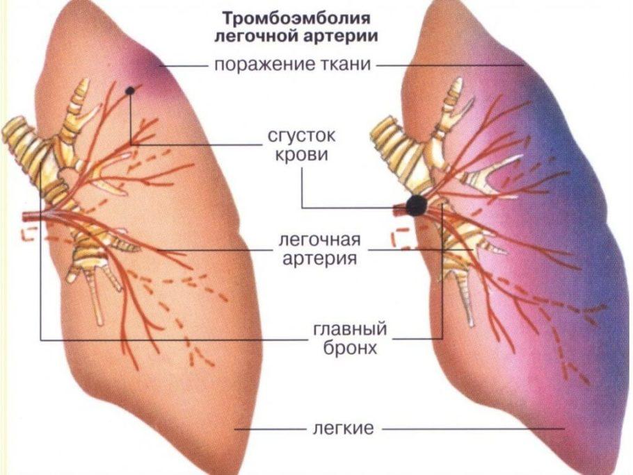 Тромбоэмболия может поразить сосуды головного мозга, сердца, кишечника, лёгких или же нижних конечностей