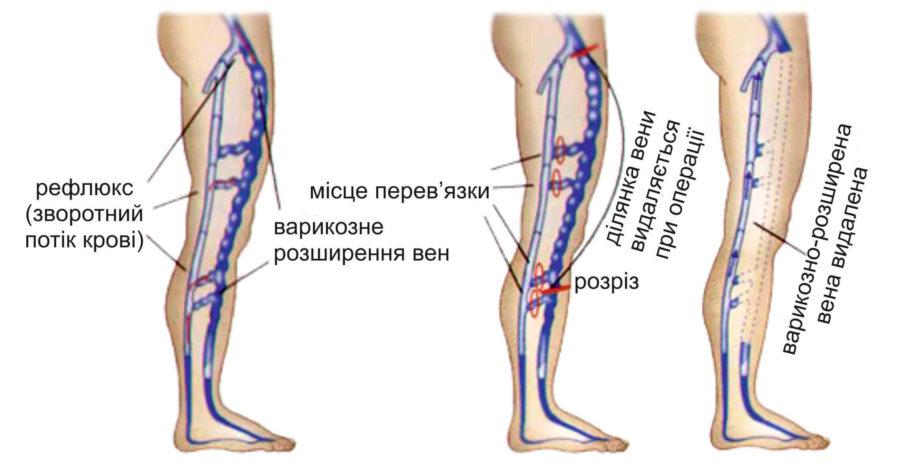 Главной целью лечения варикоза является устранение обратного тока крови в венах ног (рефлюкса)