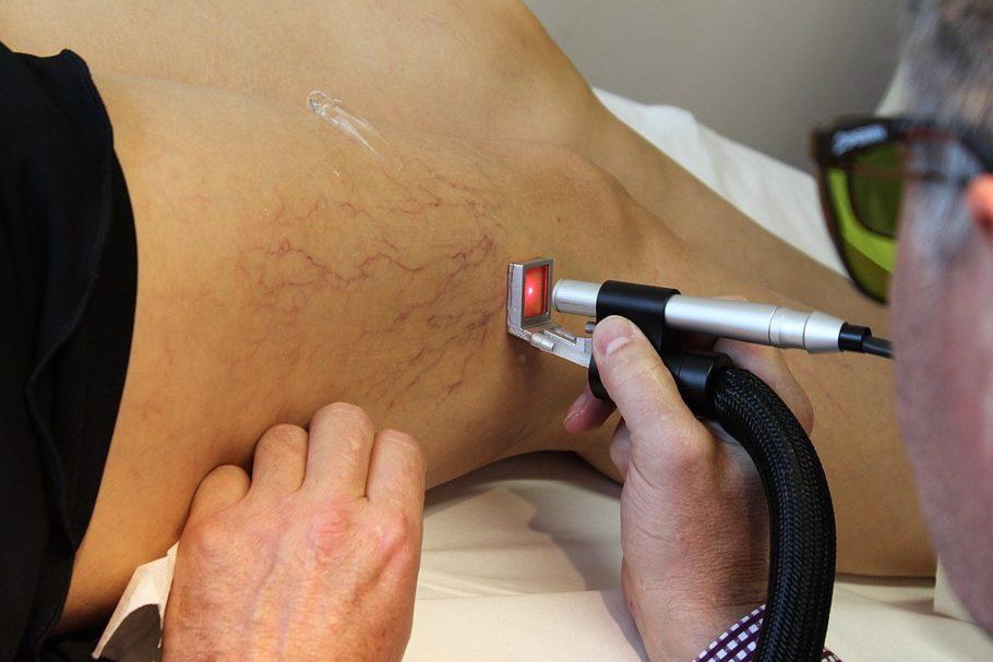 лечение сосудов лазером