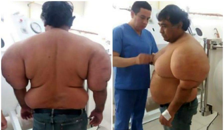 Алехандро Рамос Мартинес полсе декомпрессионной болезни