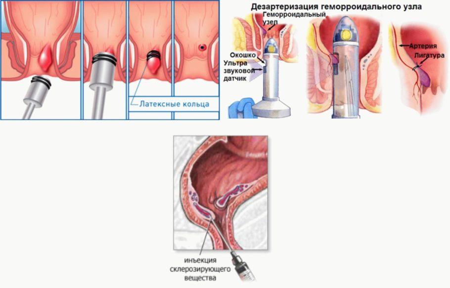 Малоинвазивные способы лечения применяются при воспаленном геморрое 1-2-й степени, осложненный геморрой устраняется при помощи хирургического вмешательства под наркозом