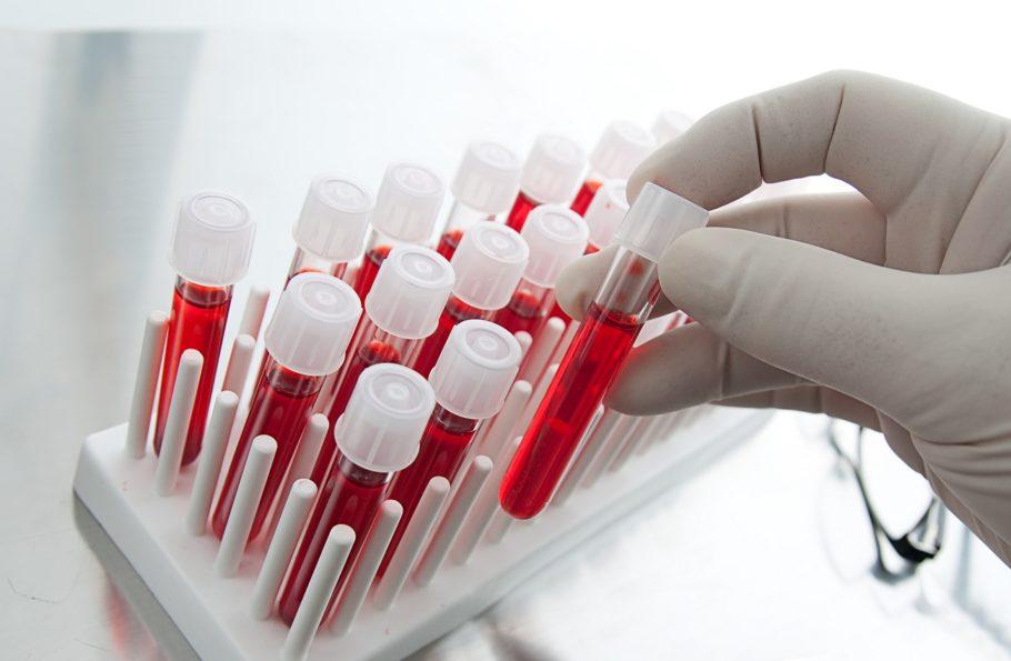 По его результатам и диагностируют застойную или инфекционную форму простатита