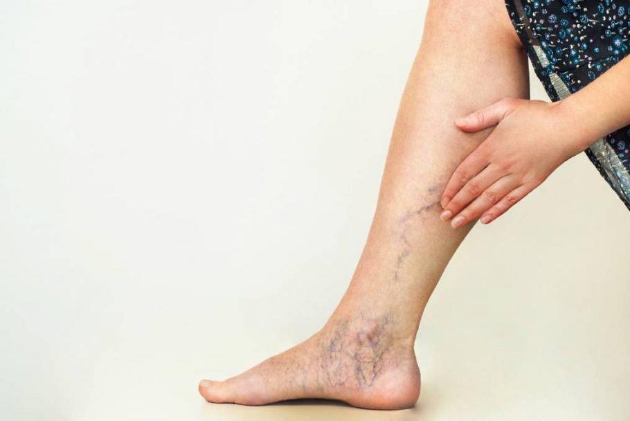 Варикозное расширение вен на ноге
