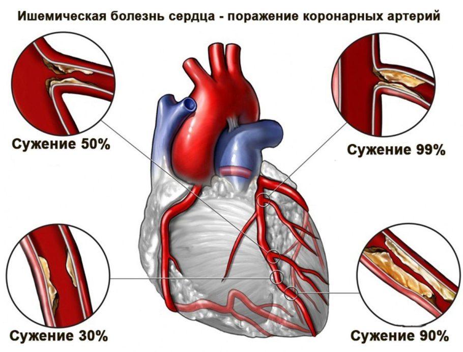 Схема поражения коронарных артерий при ишемической болезни