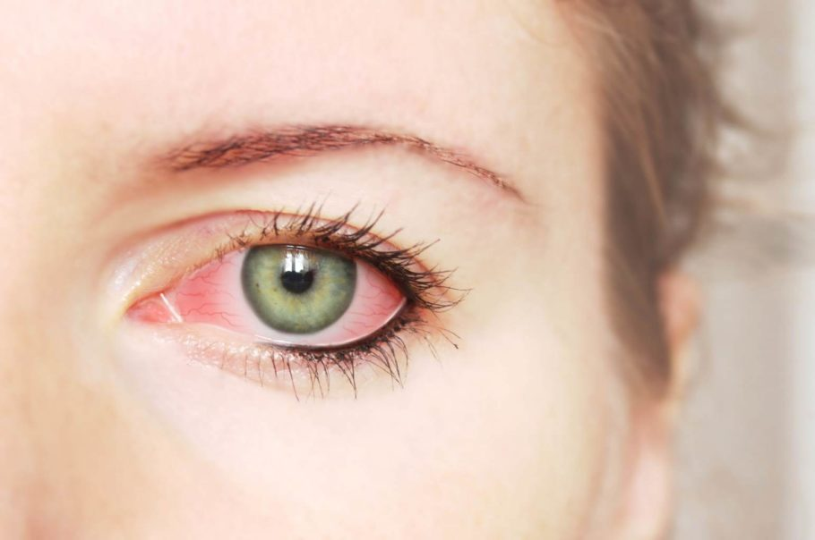 Картина изменений глазного дна при гипертонической болезни чрезвычайно многообразна