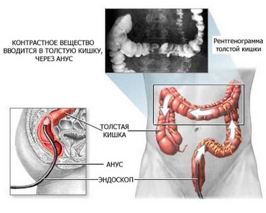 В основном при помощи ирригоскопии исследуется толстый кишечник, его концевые отделы, так как заполнение бариевой смесью идет от прямой кишки к более высоким отделам