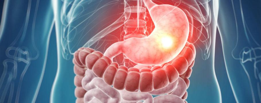 Схваткообразные боли в животе, которые связаны с интенсивным сокращением кишечника