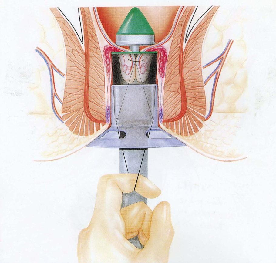 Один из радикальных методов лечения – операция Лонго или геморроидопексия