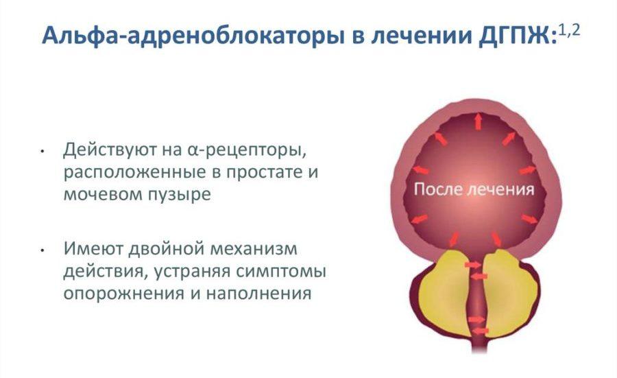 Назначение препаратов такого рода при простатите призвано повысить качество лечения