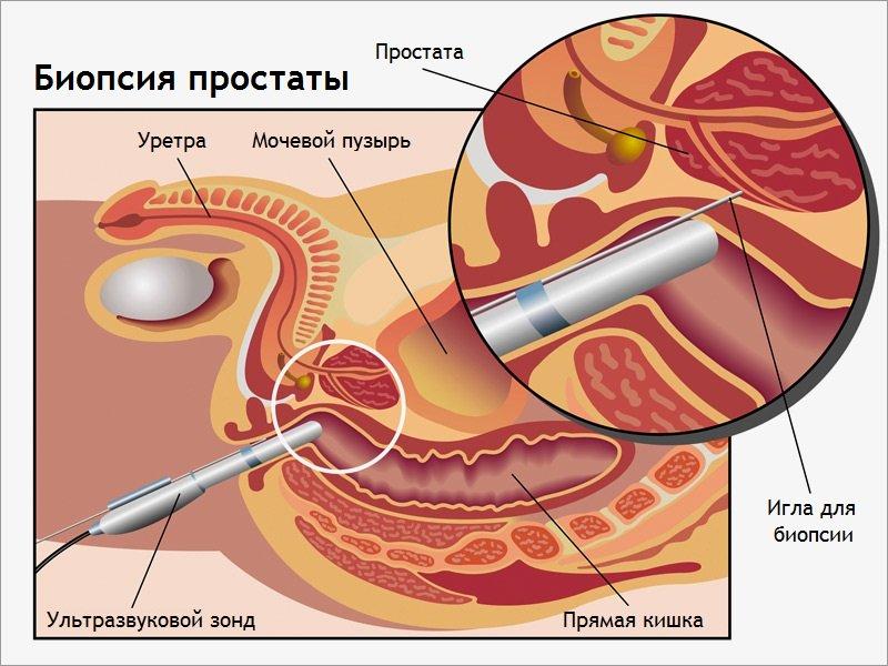 При отсутствии осложнений он может выписываться через несколько часов после биопсии или на следующий день