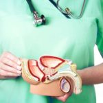 Как делают биопсию предстательной железы? Как предварительно подготовить себя?