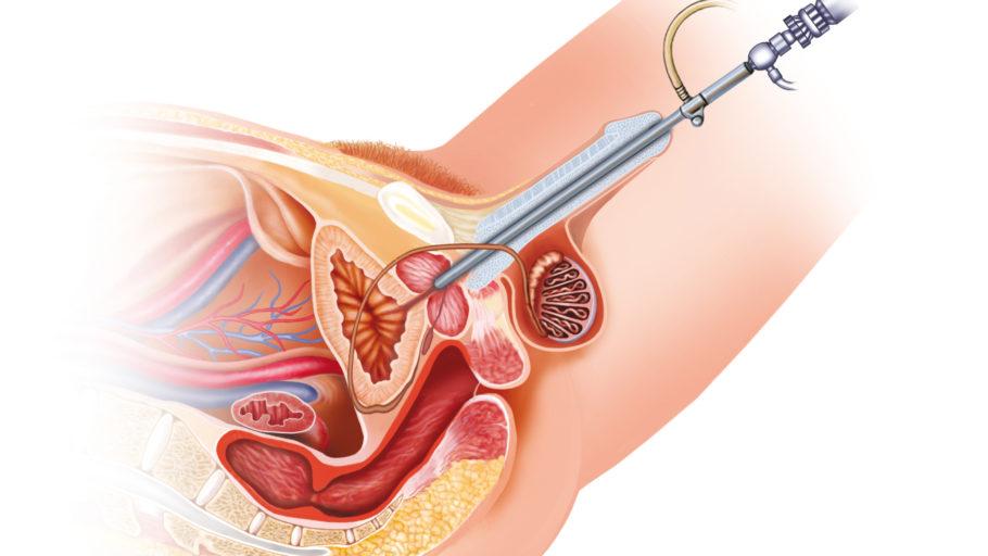 рисунок: биопсия простаты