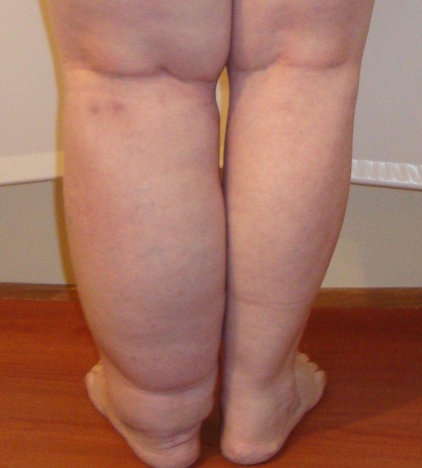 ноги лимфостаз
