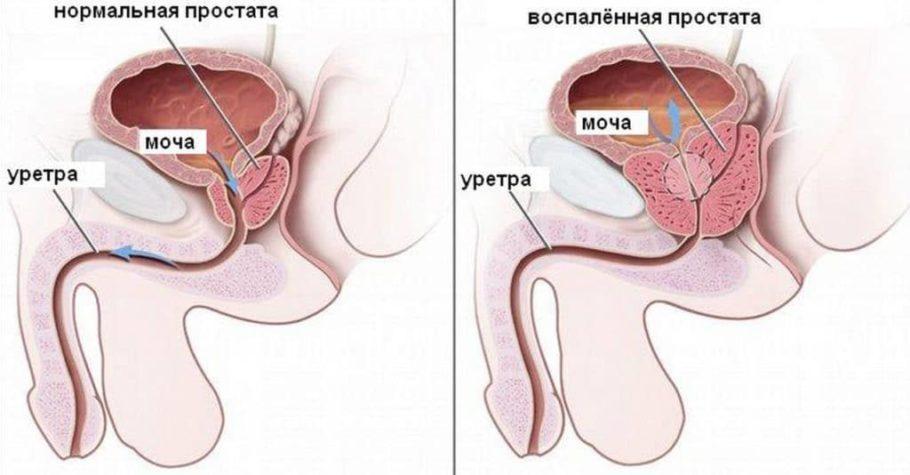 Фиброзные изменения нарушают работу органа, вызывают разрастание тканей и нарушение их функции вплоть до полной недееспособности железы