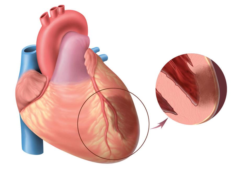 К заболеваниям, запрещающим лечение медикаментом, относятся инфаркт миокарда или острый инфаркт мозга