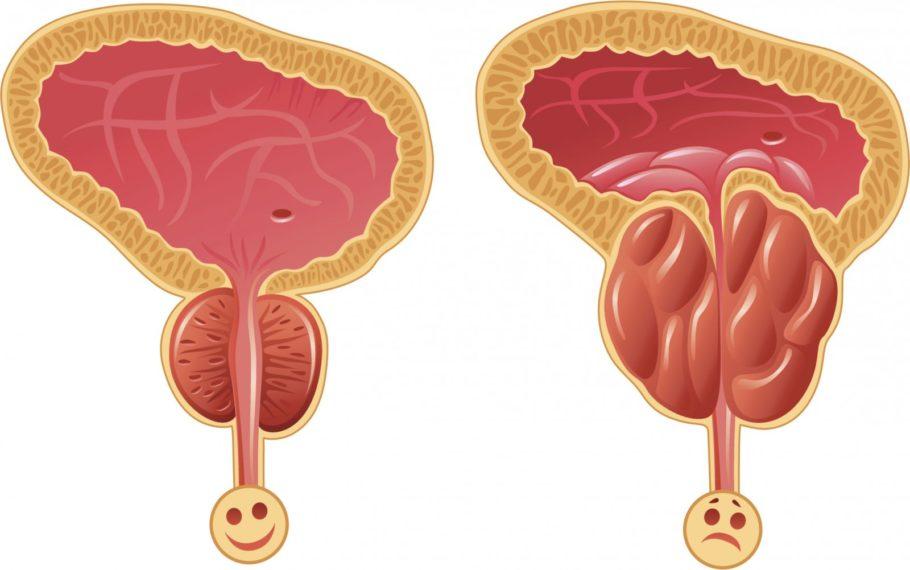 В отличие от доброкачественной аденомы, от простатита страдают не только мужчины старшего возраста