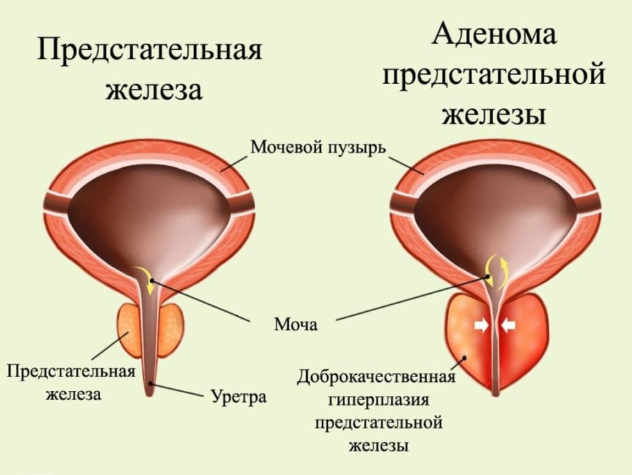 рисунок: предстательная железа