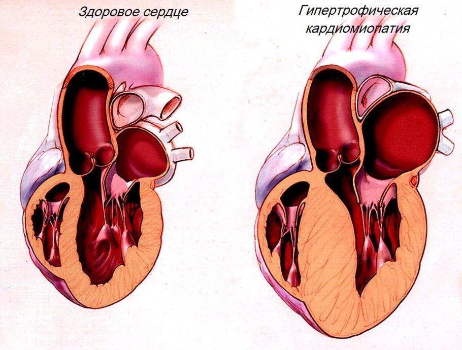 При развитии заболевания изменения могут достичь своего пика и привести к сердечной недостаточности и летальному исходу