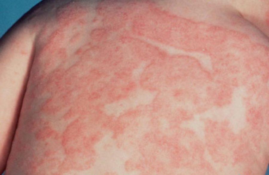 красная сыпь на коже