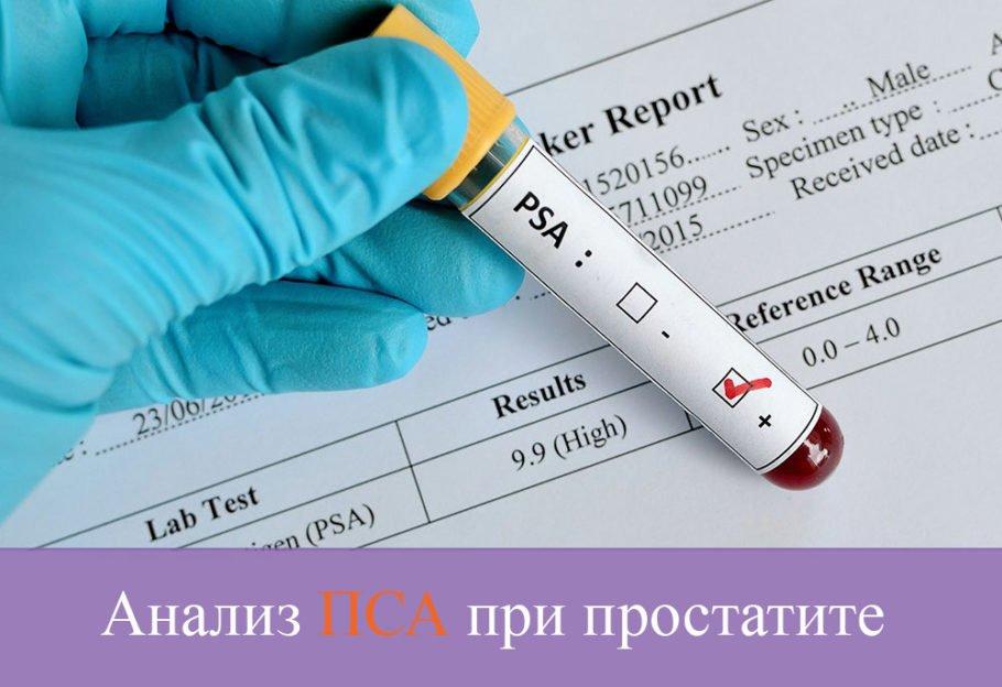ПСА –специфический антиген вырабатывающийся простатой