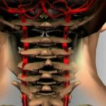 Артериальное давление и шейный остеохондроз связаны между собой? Ответ эксперта