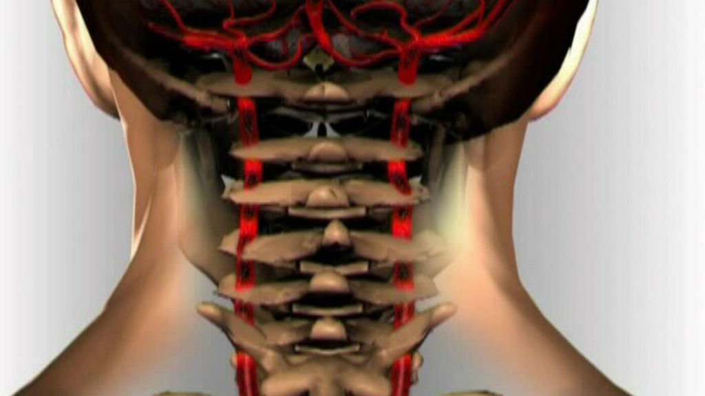 Может ли повышаться давление от остеохондроза