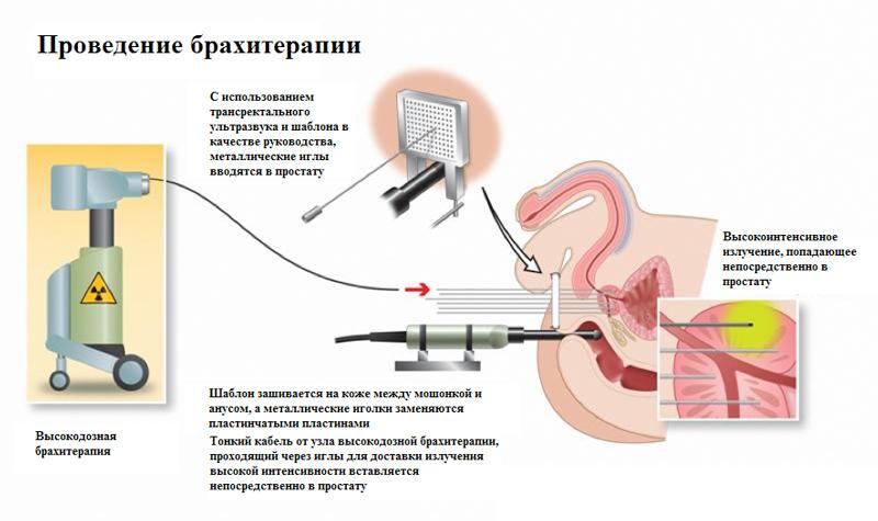 Высокодозная (HDR) брахитерапия рака простаты