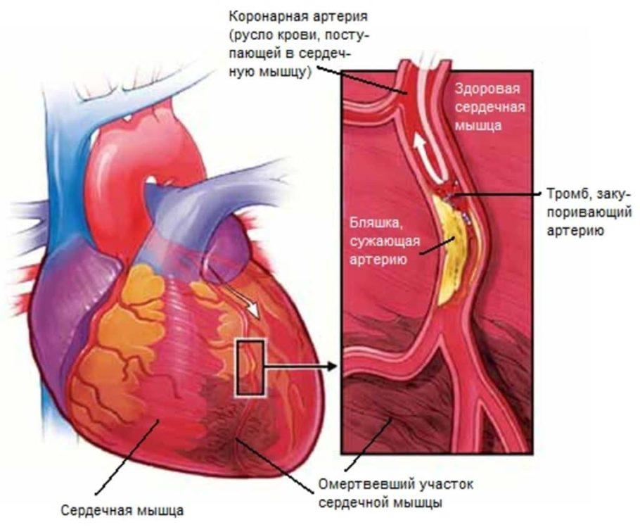 Ухудшение кровотока и кислородное голодание главной мышцы сердца провоцирует некроз: ткани начинают отмирать