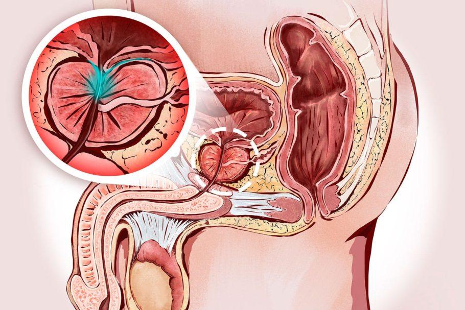 Лечение простатита, по словам специалистов, представляет собой процесс, состоящий из множества совершенно разных процедур