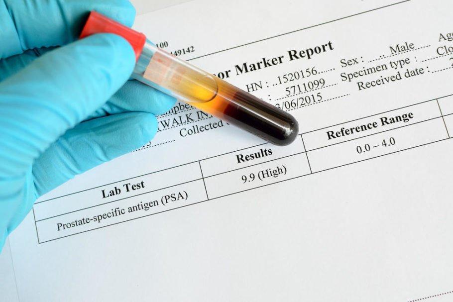 Выявление большой величины ПСА в крови помогает диагностировать наличие злокачественного заболевания на ранней стадии