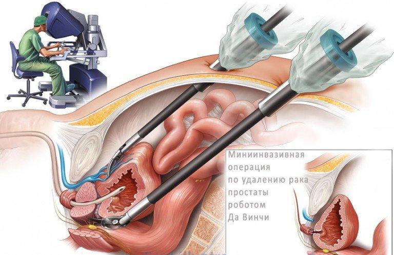 Какие виды операции при аденоме простаты