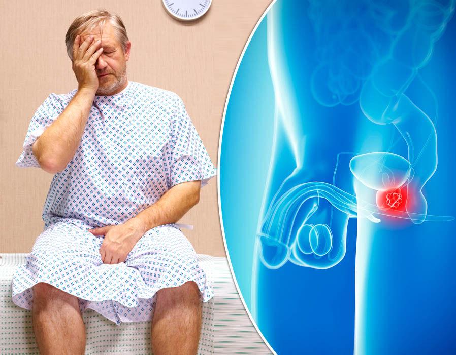 Первые признаки рака простаты напоминают проявления простатита или аденомы предстательной железы