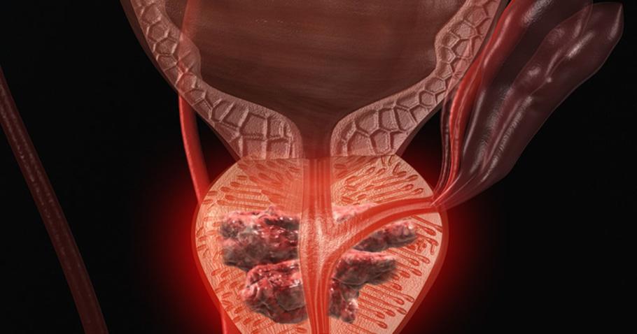 рисунок простата в разрезе