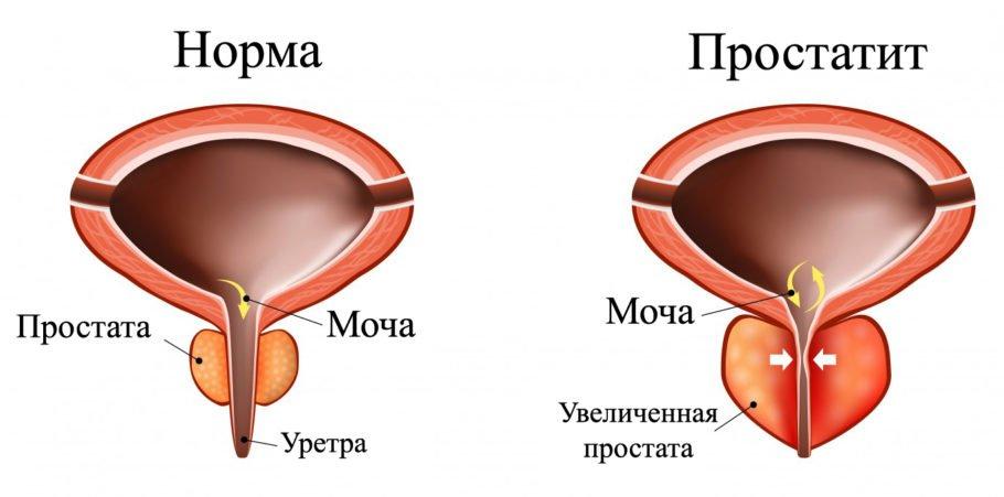 Он возникает вследствие патогенной микрофлоры или же застойного явления кровотока в органах и тканях малого таза