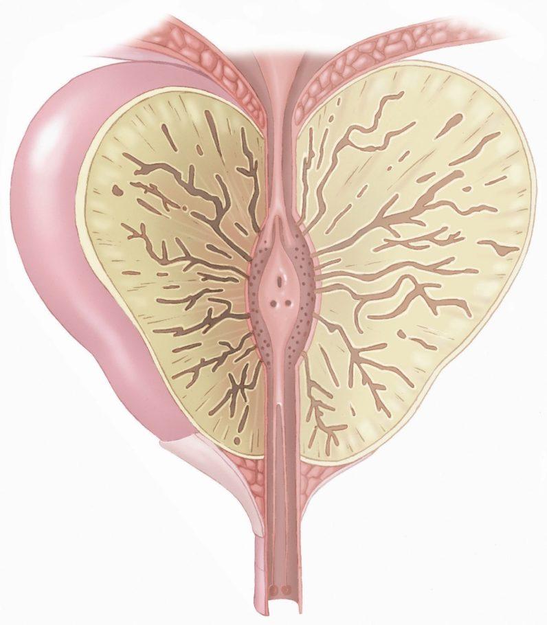 При этой форме воспаляется железистая ткань и ее отдельные дольки, в результате чего железа увеличивается и становится дряблой
