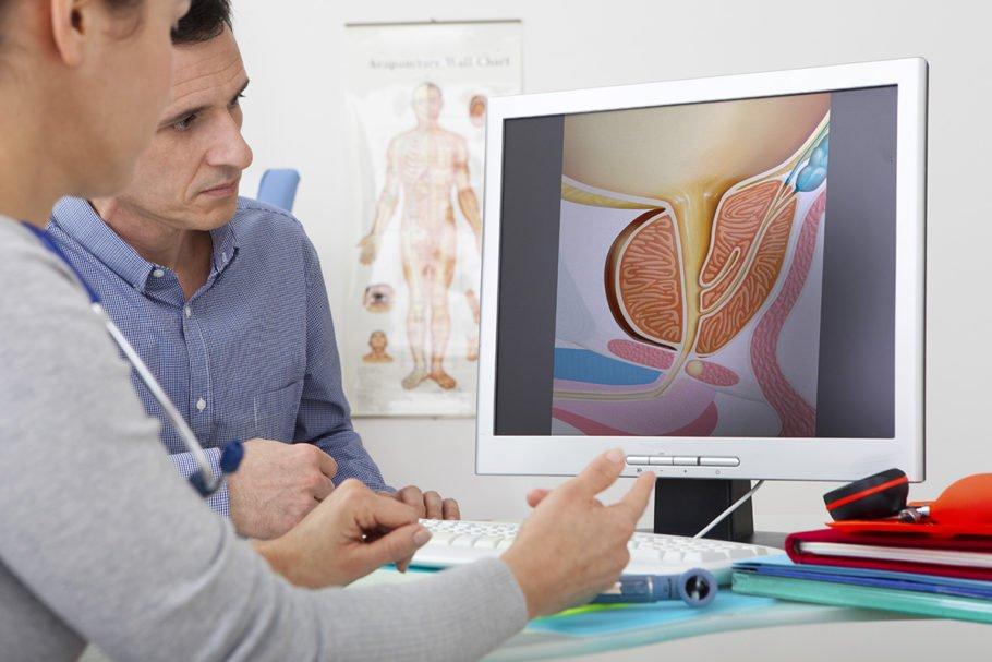 Кроме того, предстательная железа отвечает за выработку мужских половых гормонов
